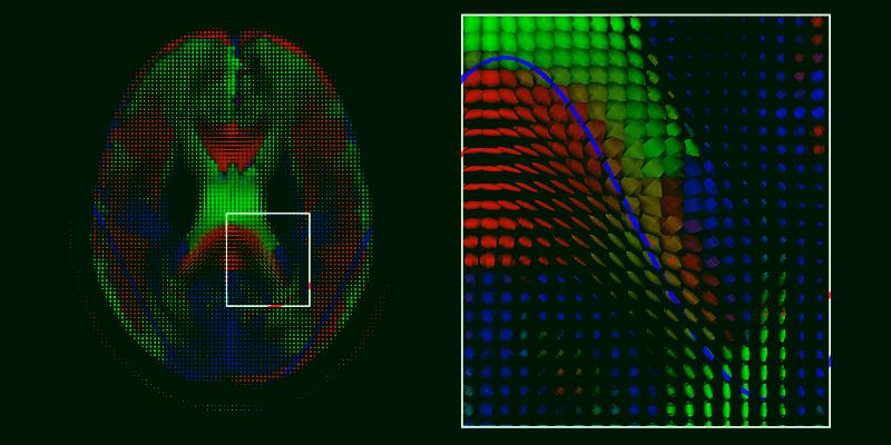 Bucles de compulsión y golpes de dopamina: cómo se diseñan los juegos para ser adictivos